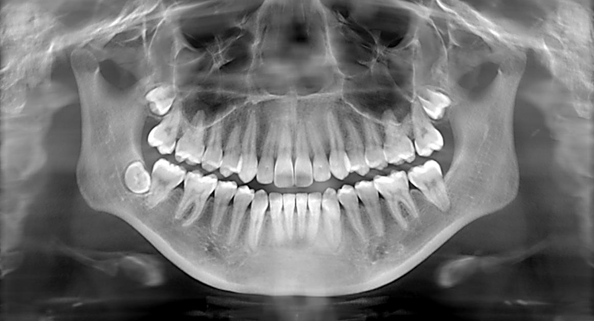 Картинка рентген зубов