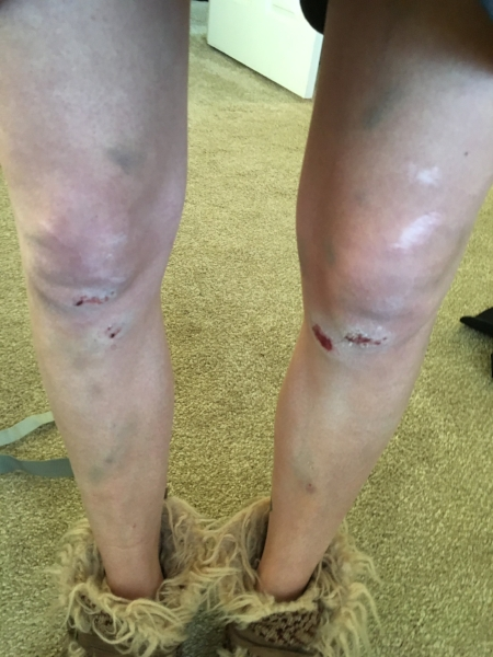 Leg bruises and scrapes from falling