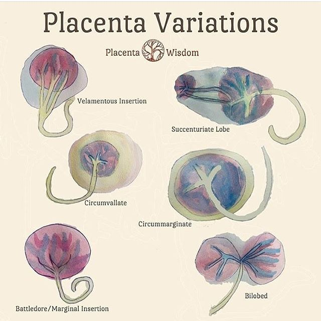 "Placenta Encapsulation is not a fad. In fact humans have been consuming their placentas for hundreds of years. In Traditional Chinese Medicine it is seen as a way to tonify the ""qi"" and fortify the blood.  #losangelesplacentaencapsulation #placenta #postpartum  #placentawisdom"