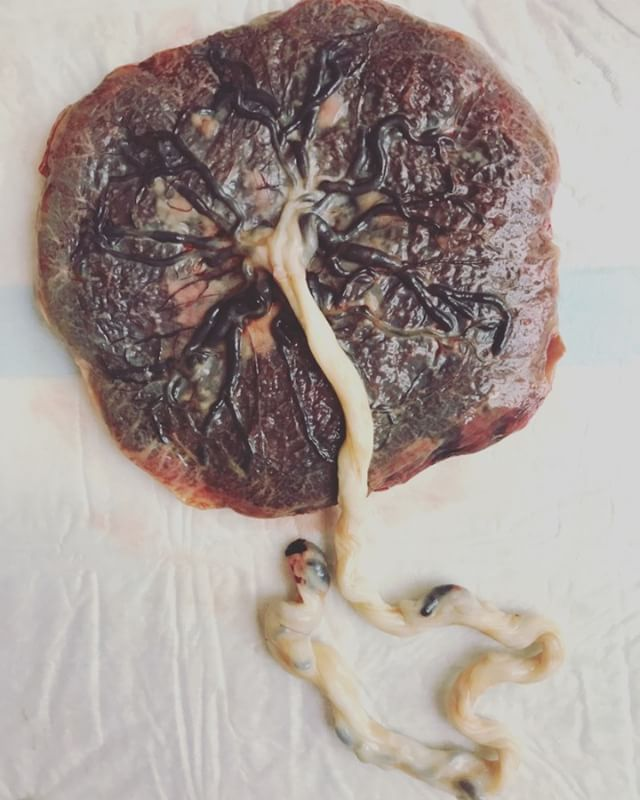 Placenta Love! #needplacentaemoji #placenta #placentaencapsulation