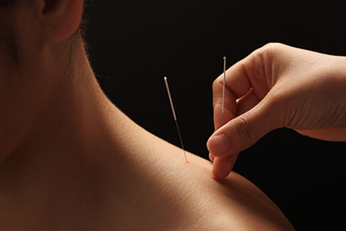 Acupuncture for pain relief and as an alternative treatment for many ailments and allergies