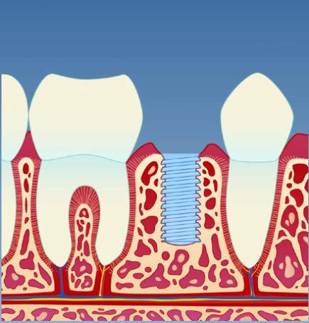 implantat2.png