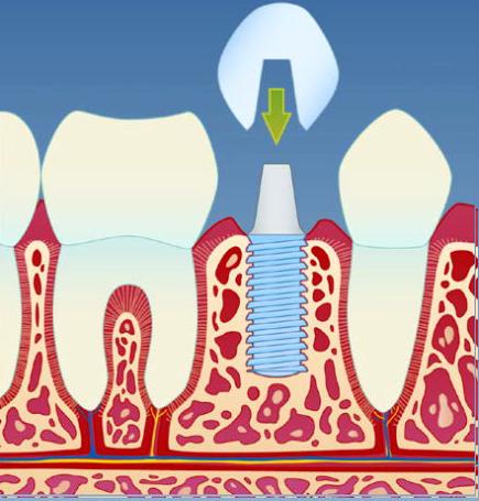 implantat3.png