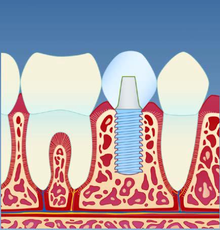 implantat4.png