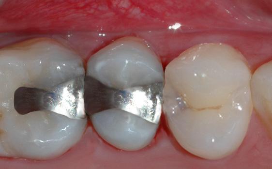 Bildet viser en tann med fargeforandring under emaljen, noe som tyder på et hull.