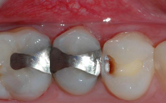 Tannen er borret delvis opp, og man kan se hvordan kariesangrepet strekker seg inn i tannen.