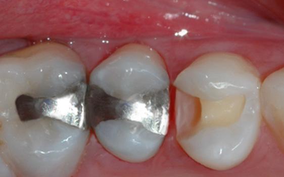 Tannen er ferdig borret og klargjort for fyllingsterapi.