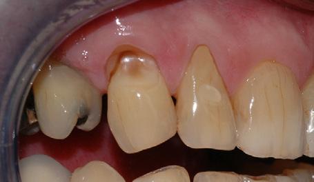 Børsteskaden er så dyp at den nærmer seg nerven i tannen.