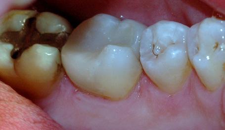 Bruddlinjen førte over tid til at tannen frakturerte