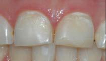 Et nærbilde viser at tennene har en matt overflate og områder med et gulere preg.