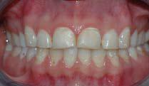 Bildet viser tenner som har vært utsatt for syrepåvirkning