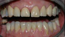 Man kan se hvordan tennene er svært slitt.