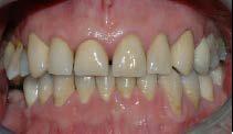 Det var her nødvendig å reparere tennene med keramiske kroner.
