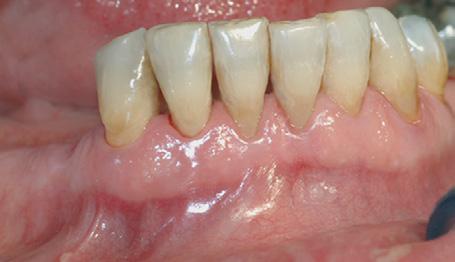 Bildet viser tilsynelatende normale tannkjøttsforhold ved tenner i underkjeven.
