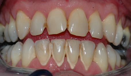 Bildet viser et tannsett med synlig tannsten og misfarging