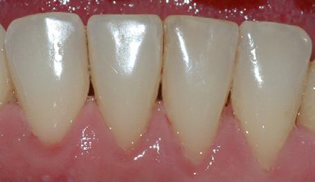 Bildet viser forholdene i underkjeven etter at tannsten og misfarging er fjernet