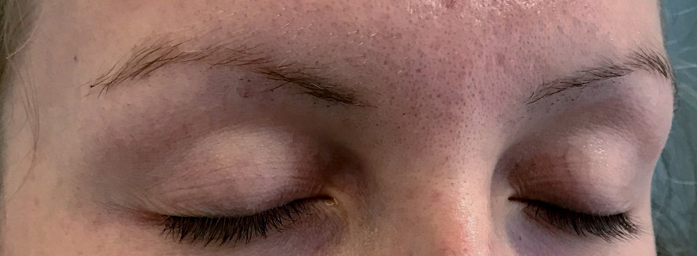 Before: right brow