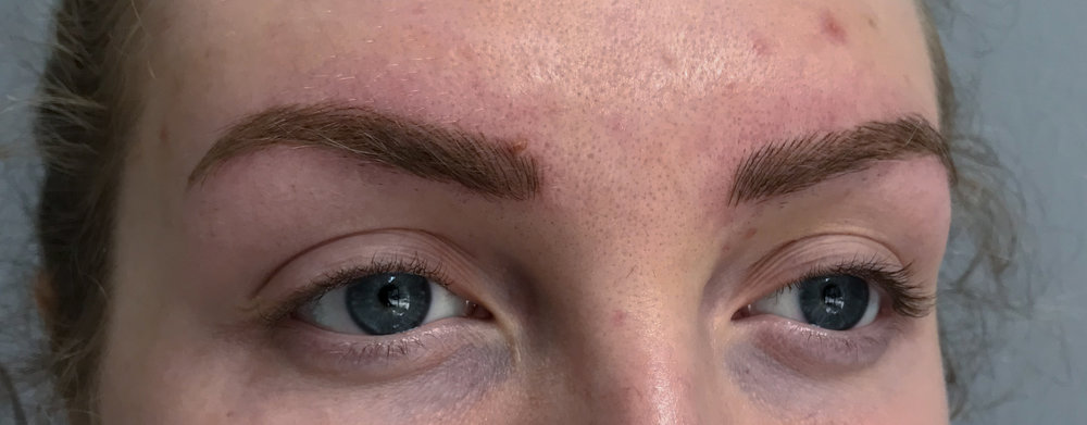 After: right brow