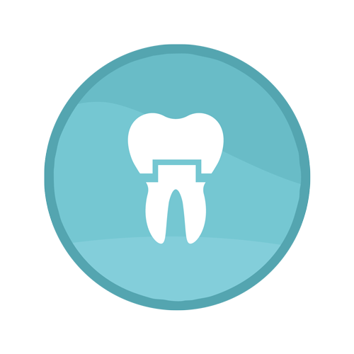 Crown Procedure | Summit Family Dental, Ankeny, Iowa
