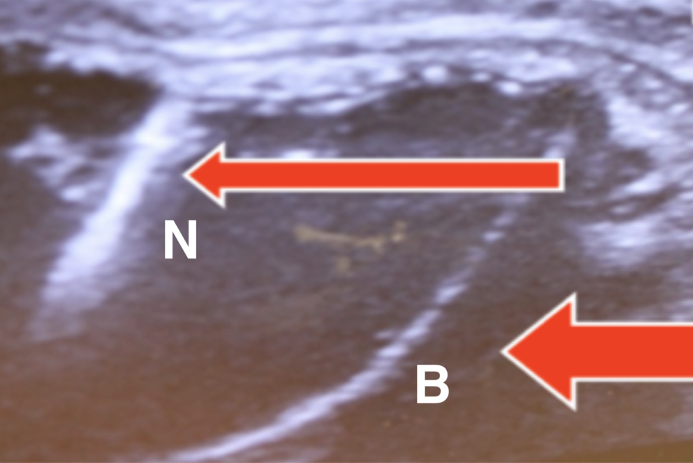 Ultrasound Confirmation.png