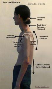 kephotic_posture_side-176x300.jpg