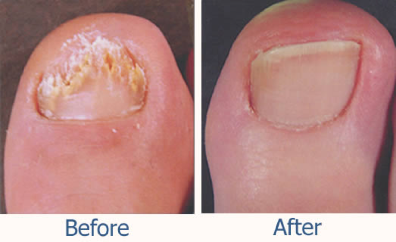 Flip Flop Season and Fungus! (Part 2) — Southshore Foot and Ankle ...