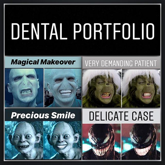 For Toothsday, I thought I would showcase some special cases I have done: 1. Lord Voldemort - after a Hygiene visit, we did some whitening and then some composite bonding to finish the look 2. The Grinch - here, we used braces to align the teeth and then finished with some whitening and a little bonding to finish the case 3. Gollum - unfortunately, years of living in a cave meant the teeth were unrestorable so we had to remove and we went for an implant retained bridge to give this patient back his precious smile 4. Venom - this patient had very little time to achieve the desired smile so we opted for full mouth veneers. I think the shade is a little white but I wasn't going to tell him that! 😂😂😂😂😂😂😂😂😂😂😂😂😂😂😂#dentist #cosmeticdentistry #braces #veneers #implants