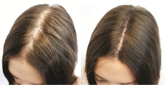 hair-regrowth.jpg