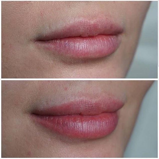 Результат после одной процедуры Перманентного макияжа методом микро-напыления!💕 ⠀ Процедура проводится после заморозки кремом и практически безболезненна. ⠀ После процедуры остаётся небольшой отек, который уходит через час. ⠀ Следующие два дня эффект ярко-накрашенных губ. ⠀ Желательно пользоваться увлажняющими кремами, т.к будет небольшое шелушение. ⠀ ❗️Никаких корок и сложной реабилитации!! ⠀ Уже через два дня ваши губы приобретут нежный цвет, который придаст вашей внешности яркости и индивидуальности. ⠀ Стоимость процедуры: 10.000 рублей ⠀ Запись по телефону: +7-812-470-18-42 ⠀ #пушкин #питер #косметология #красота #перманентныйиакияж #перманентгуб #перманентныйиакияж #косметолог #спб #любисебя #салон #царскоесело #новаяуслуга
