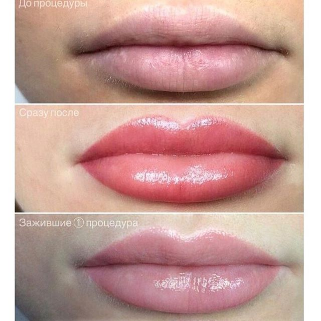 Перманент губ – прекрасное средство для женщин, живущих полной жизнью и ценящих своё время. С ним вы будете всегда выглядеть идеально и в то же время естественно! 👄 ⠀ Перманентный макияж поможет: ⠀ - скрыть  асимметричность бровей или губ , выровнивает  контур. ⠀ - увеличить объём тонких губ; визуально приподнять их опущенные уголки; придать яркость бледным губам. ⠀ -Цветовая палитра пигментов, используемых для перманентного макияжа губ очень широка: с помощью светлых, почти незаметных красок можно визуально увеличить или уменьшить объем губ, сделать более чётким их контур. ⠀ - Цвета на 1-2 тона ярче натуральных помогут справиться с бледностью губ. ⠀ В зависимости от того, какой результат вы хотите получить, перманентный макияж губ может проводиться не только разными цветами, но и в разном объёме. ⠀ Подробности спрашивайте у нашего специалиста Ирины.🦋 ⠀ Телефон для записи: +7-812-470-18-42 ❤️ ⠀ #пушкин #салон #санктпетербург #питер #спб #косметология #косметолог #перманентныйиакияж #макияж #перманент #перманентгуб #перманентбровей #губы #брови #любисебя #красота