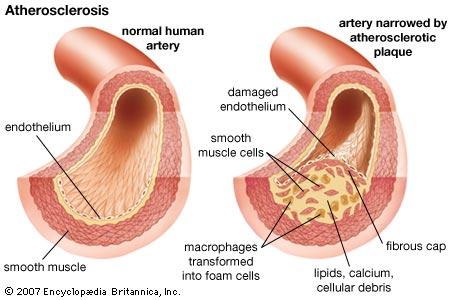 atherosclerosis.jpg