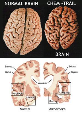 chemtrail_brain.jpg