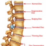 diagram_spine_conditions.57131206_std