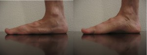 An example of short foot exercise.