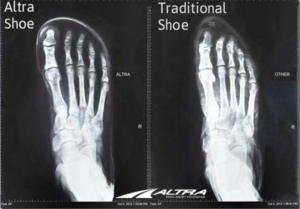 Foot alignment in conventional shoe vs minimalist shoe.