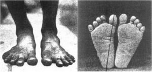 Normal feet that developed in an unshod environment.