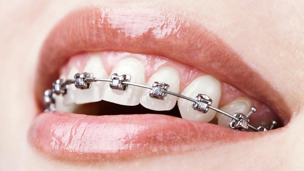 Ортодонтія