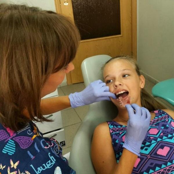 Щаслива й усміхнена Софія під час примірки знімного пластинкового ортодонтичного апарату :)