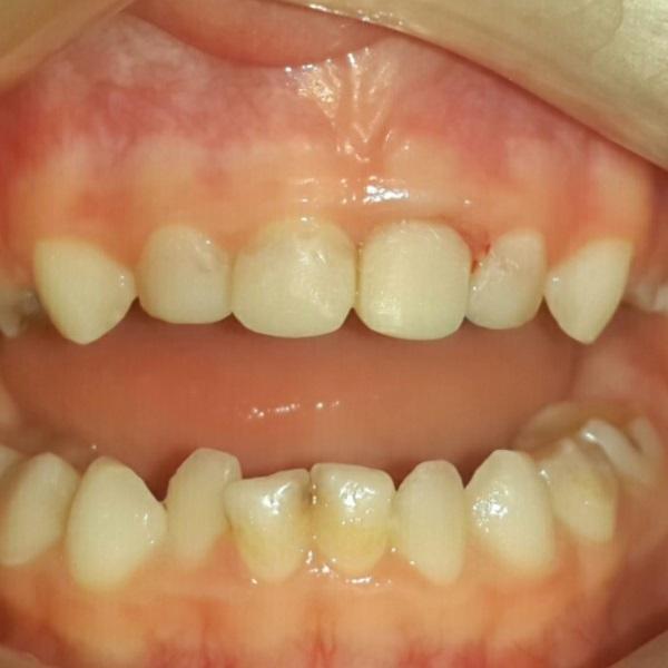 стоматологія-нечай-реставрація-молочних-зубів-2.jpg