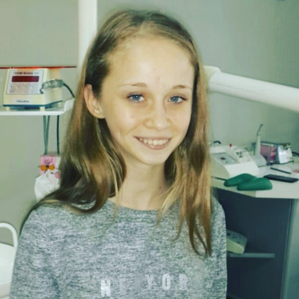 Шкода розлучатися з брекетами, адже це не тільки лікувальна апаратура, а і модний аксесуар. Але лікування завершено — і 15-річна Настя попрощалася з ними :)