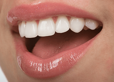 Perfect Smile Cosmetic Dentistry