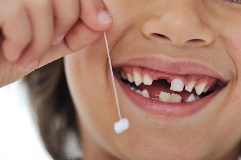 All Smiles Dentistry offers dental care for kids too