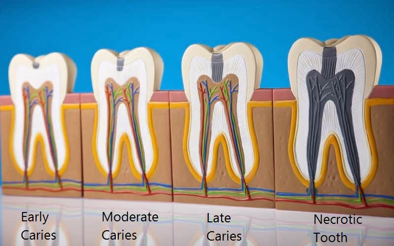 Stages of caries