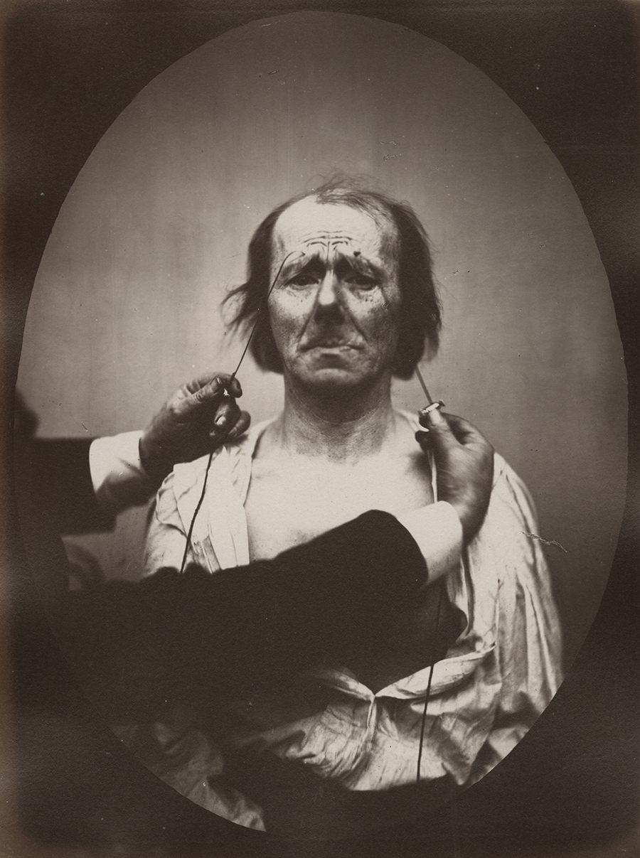Duchenne de Boulogne and Adrien Tournachon (French, 1806-1875 & 1825-1903) Profound suffering, with resignation, 1862, Negative, circa 1856. Courtesy of Hans P. Kraus Jr. Fine Photographs.