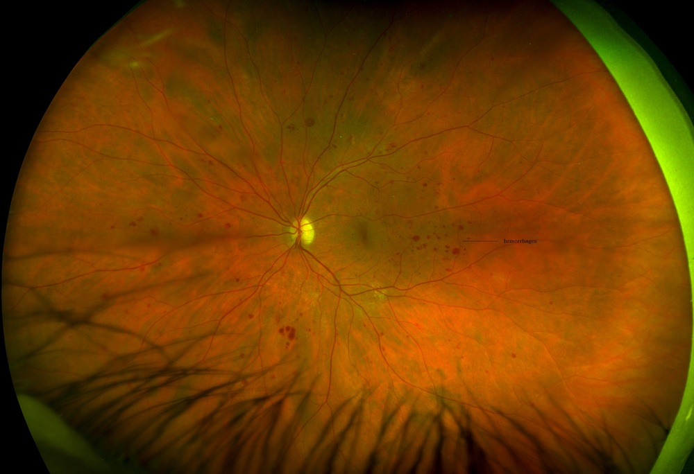 Optomap retinal scan of a retina with diabetic retinopathy