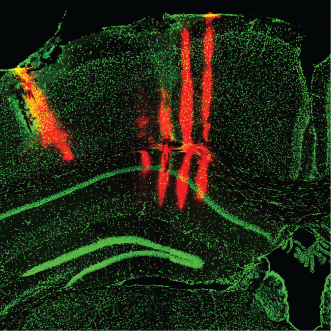 (DiI stain of electrode tracks in visual cortex and Hippocampal area CA1 , from Saleem et al. in prep.)