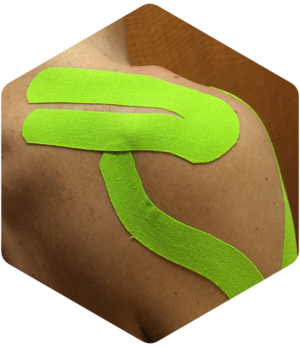 kinesio tape physical therapy