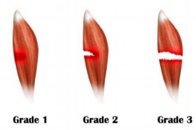 muscle tear.jpg