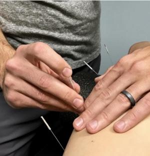 dry needling chiropractor