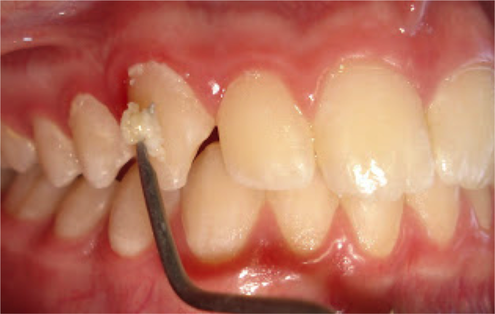 Dental Plaque (biofilm) being removed from teeth with a dental instrument